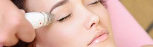 Фото процедуры лифтинга лица